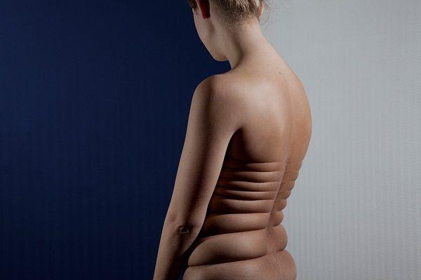 Artistic Skin Manipulation