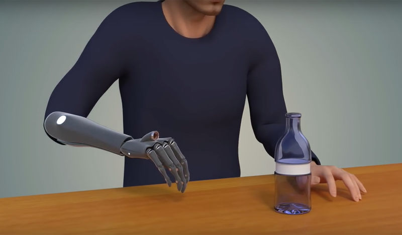 Intuitive Bionic Hands