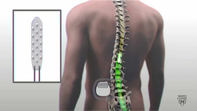 Spinal Injury Repair Implants
