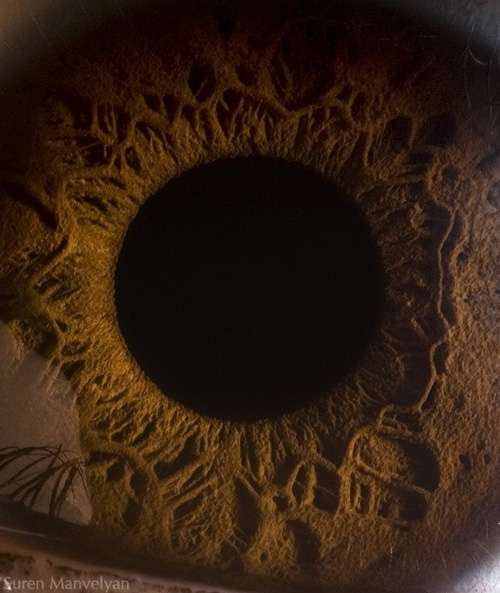 Close-Up Eye Craters