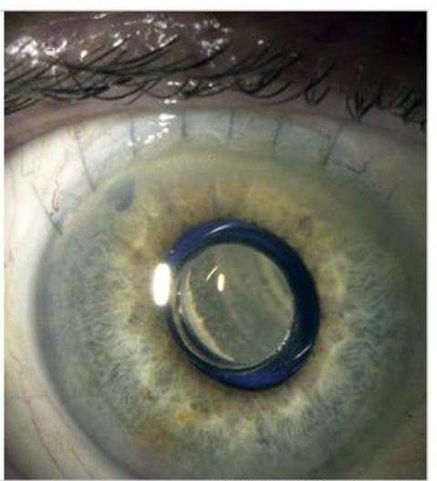 Telescopic Eyeball Implants