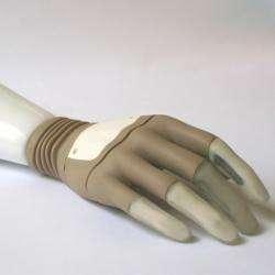 Bionic Hand Transplants