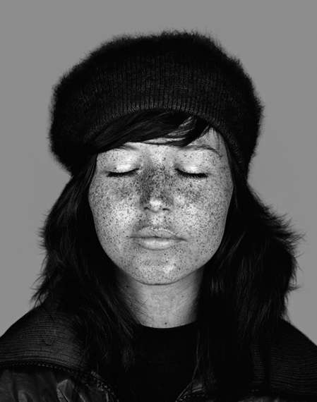 Skin-Imperfection Portraits
