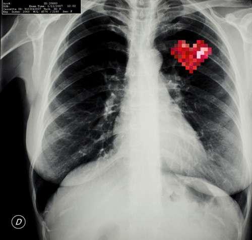 Pixelated Anatomy X-Rays