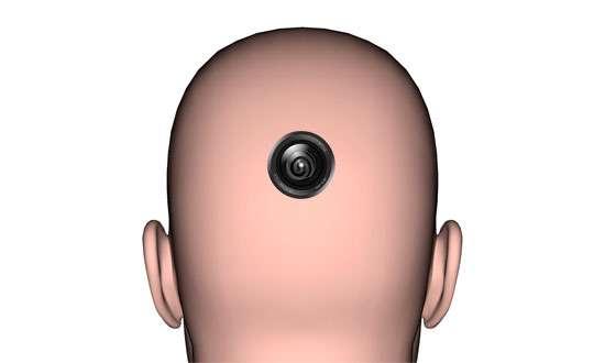 Camera Head Implants