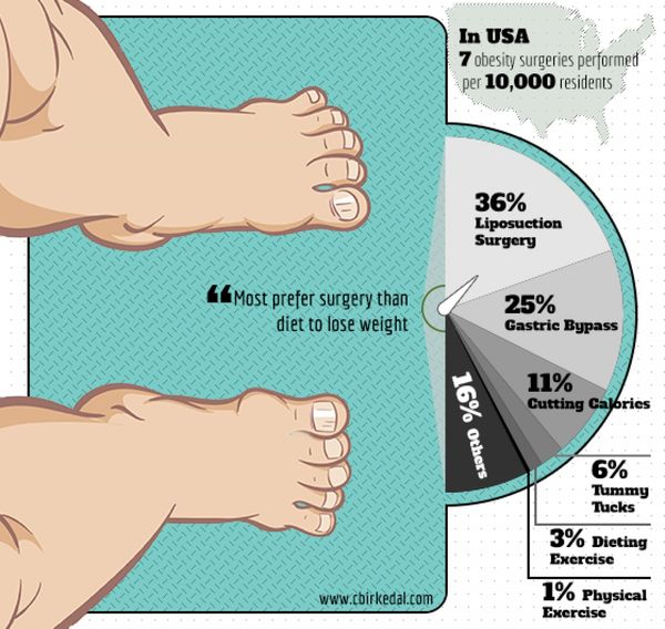 Surgically Slimming Infographics : weight-loss surgery